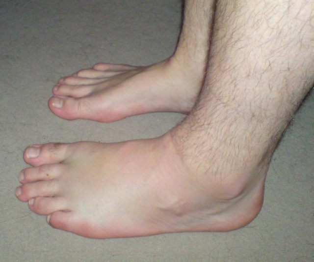 38.2-7-Causes-of-Swollen-Feet-and-Legs-640x533.jpg